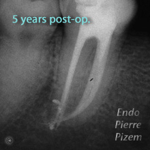 Atypical Canal Configurations, Type V, Root Canal Treatment Post-Therapy 47-1