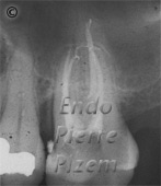 Dental operating microscope (D.O.M.), Striving for Second Mesio Vestibular (MB2), Root Canal Treatment Post-Therapy 10-1