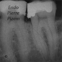 Atypical Canal Configurations, Long Teeth, Root Canal Treatment Pre-Therapy 123437-1