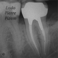 Atypical Canal Configurations, Long Teeth, Root Canal Treatment Post-Therapy 123437-1