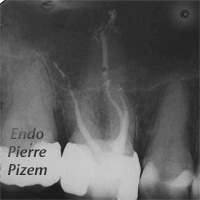 Dental operating microscope (D.O.M.), Striving for Second Mesio Vestibular (MB2), Root Canal Treatment Post-Therapy 297716-1