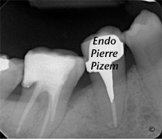 Extreme Endo Clinical Cases, Root Canal Treatment Post-Therapy (2)