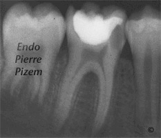 Atypical Canal Configurations, Very Long Teeth, Root Canal Treatment Pre-Therapy 431446-1
