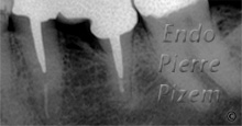 Dental Operative Microscope and Retreatment, Dealing with Broken Instruments Removal, Root Canal Treatment Post-Therapy 01-1