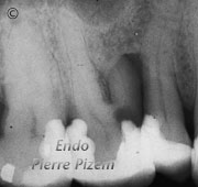Surgical removal of tooth structure, Tooth sectioning, Root Canal Treatment Pre-Therapy 05-1