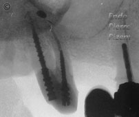 Surgical removal of tooth structure, Tooth sectioning, Root Canal Treatment Post-Therapy 04-1