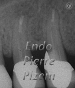 Surgical removal of tooth structure, Apicoectomy, Curettage and Retrofilling, Root Canal Treatment Post-Therapy 01-1