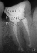Atypical Canal Configurations, Type V, Root Canal Treatment Per-Therapy 3-1
