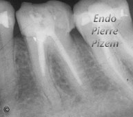 Atypical Canal Configurations, Very Long Teeth, Root Canal Treatment Pre-Therapy 09-1