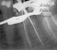 Atypical Canal Configurations, Very Long Teeth, Root Canal Treatment Per-Therapy 09-1