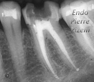 Atypical Canal Configurations, Very Long Teeth, Root Canal Treatment Post-Therapy 09-1