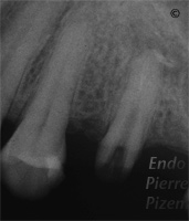 Atypical Canal Configurations, Type V, Root Canal Treatment Per-Therapy 426-1