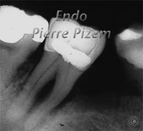 Extreme Endo Clinical Cases, Root Canal Treatment Pre-Therapy 53847-2