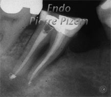 Extreme Endo Clinical Cases, Root Canal Treatment Per-Therapy 53847-1