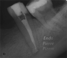 Dental operating microscope (D.O.M.), Dental operative microscope versus cracks, Root Canal Treatment Post-Therapy 141101-2