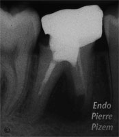 Surgical removal of tooth structure, Tooth sectioning, Root Canal Treatment Pre-Therapy 336-1