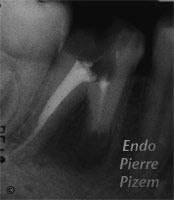 Surgical removal of tooth structure, Tooth sectioning, Root Canal Treatment Per-Therapy 336-1