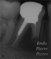 Surgical removal of tooth structure, Tooth sectioning, Root Canal Treatment Per-Therapy 336-2