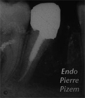 Surgical removal of tooth structure, Tooth sectioning, Root Canal Treatment Post-Therapy 336-1