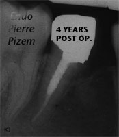 Surgical removal of tooth structure, Tooth sectioning, Root Canal Treatment Post-Therapy 336-3