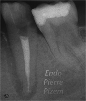 Dental Operative Microscope and Retreatment, Dealing with Ledges and Apical Zip, Root Canal Treatment Per-Therapy (1)