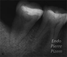 Atypical Canal Configurations, 'C' Shaped Canal System, Root Canal Treatment Pre-Therapy 340-1
