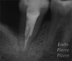 Atypical Canal Configurations, 'C' Shaped Canal System, Root Canal Treatment Post-Therapy 340-1