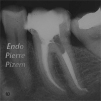 Atypical canal configurations, Type II, Root Canal Treatment Post-Therapy 119711-2