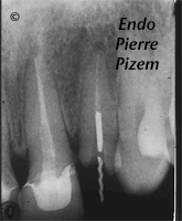 Dental Operative Microscope and Retreatment, Dealing with Casted and Machined Posts Removal, Root Canal Treatment Pre-Therapy 436822-1