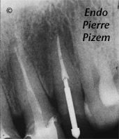 Dental Operative Microscope and Retreatment, Dealing with Casted and Machined Posts Removal, Root Canal Treatment Post-Therapy 436822-1