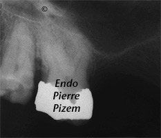 Atypical Canal Configurations, Type V, Root Canal Treatment Pre-Therapy 438018-1