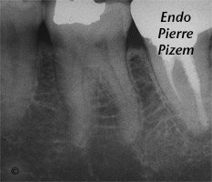 Atypical Canal Configurations, Type V, Root Canal Treatment Pre-Therapy 49736-1