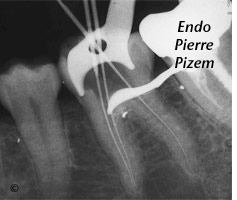 Atypical Canal Configurations, Type V, Root Canal Treatment Per-Therapy 49736-1