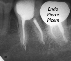 Atypical Canal Configurations, Type V, Root Canal Treatment Post-Therapy 49736-1