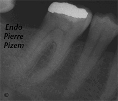 Atypical Canal Configurations, Type V, Root Canal Treatment Pre-Therapy 125546-1