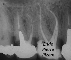 Dental Operative Microscope and Retreatment, Dealing with Casted and Machined Posts Removal, Root Canal Treatment Pre-Therapy 43881617-2