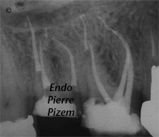 Dental Operative Microscope and Retreatment, Dealing with Casted and Machined Posts Removal, Root Canal Treatment Post-Therapy 43881617-1