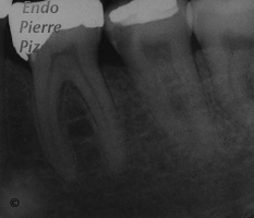Atypical Canal Configurations, 'C' Shaped Canal System, Root Canal Treatment Pre-Therapy 402-1