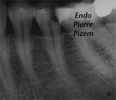 Curved Canals, Canal Curvature with an 'S' form, Root Canal Treatment Pre-Therapy 38735-1
