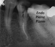 Curved Canals, Canal Curvature with an 'S' form, Root Canal Treatment Post-Therapy 38735-1