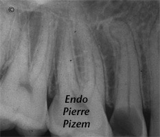 Atypical Canal Configurations, Type V, Root Canal Treatment Per-Therapy 439915-1