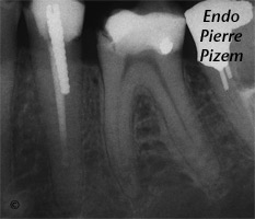 Atypical Canal Configurations, Long Teeth, Root Canal Treatment Pre-Therapy 43623536-1