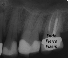 Dental operating microscope (D.O.M.), D.O.M. versus completely calcified systems, Root Canal Treatment Pre-Therapy 107926-1