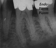 Atypical Canal Configurations, Type V, Root Canal Treatment Pre-Therapy 107936-1