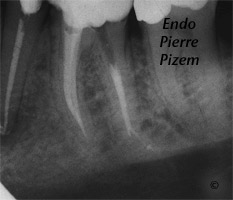 Atypical Canal Configurations, Type V, Root Canal Treatment Per-Therapy 107936-1