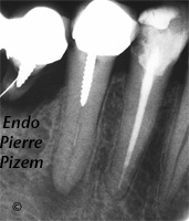 Dental Operative Microscope and Retreatment, Dealing with Broken Instruments Removal, Root Canal Treatment Pre-Therapy 436145-1
