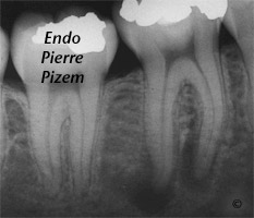 Atypical Canal Configurations, Type V, Root Canal Treatment Pre-Therapy 442546-1
