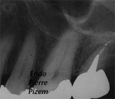 Atypical canal configurations, Type III, Root Canal Treatment Pre-Therapy 363826-1