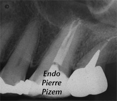 Atypical canal configurations, Type III, Root Canal Treatment Post-Therapy 363826-1
