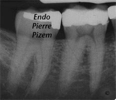Curved Canals, Extremely curved root canals (90 degrees +), Root Canal Treatment Pre-Therapy 124746-1